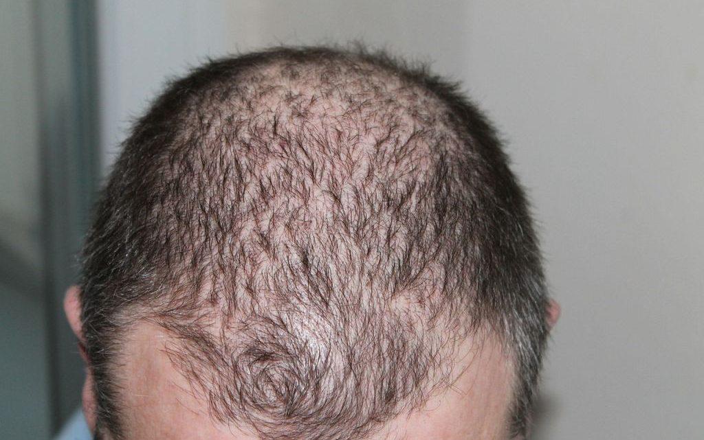 Les différents moyens de lutter contre la chute des cheveux